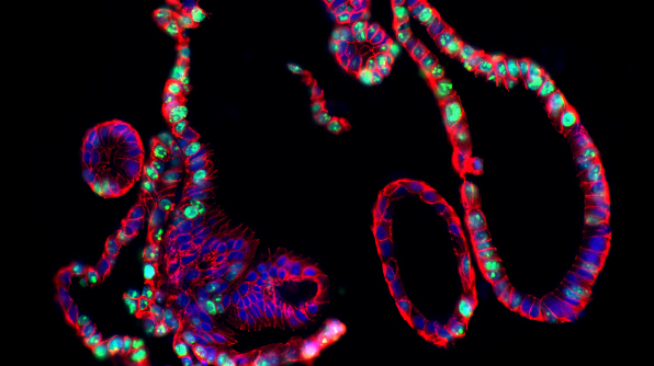 Immunofluorescence image of a human adult stem cell-derived intestinal organoid.
