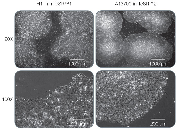 Morphology of colonies passaged using Gentle Cell Dissociation Reagent