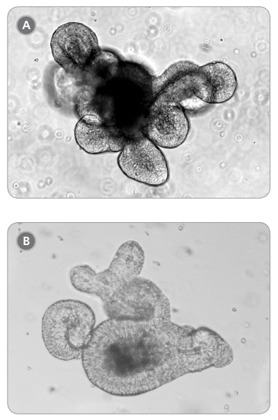 Light microscope visualization (10X) of mature intestinal organoids cultured in domes of 1:1 Matrigel® Matrix and IntestiCult™. Organoid Growth Medium and incubated at 37°C and 5% CO<sub>2</sub>. (A) Small intestinal organoid after five days of culture and (B) colon organoids after 10 days of culture.