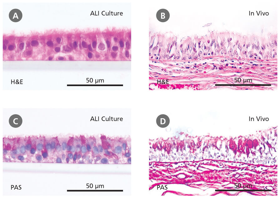 Primary Human Bronchial Epithelial Cells Cultured at the Air-Liquid Interface Recapitulate the In Vivo Bronchial Epithelium