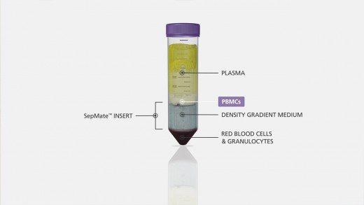 How to Use SepMate™ to Isolate PBMCs from Whole Blood in Just 15 Minutes