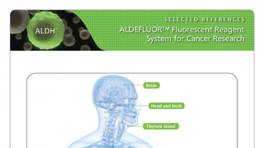 ALDEFLUOR™ Selected Cancer References