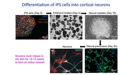 Neuronal Phenotyping of an iPS Cell Model of Rett Syndrome