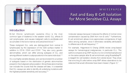 Fast and Easy B Cell Isolation for More Sensitive CLL Assays