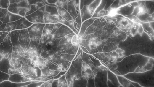 Therapeutic Application of Endothelial Colony-Forming Cells for Retinal Diseases