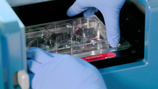 How to Standardize Hematopoietic Colony Counting with STEMvision™