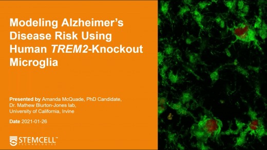 Modeling Alzheimer's risk using human TREM2-knockout microglia