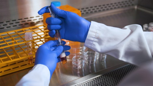 Procedure for Setting Up the CFU Assay