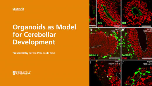 Virtual STEMCELL Seminar: Organoids as Models for Cerebellar Development