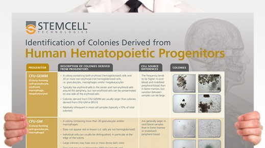 Identification of Colonies Derived from Human Hematopoietic Progenitors