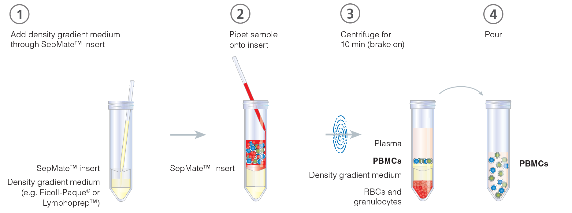 Typical SepMate™ PBMC isolation protocol