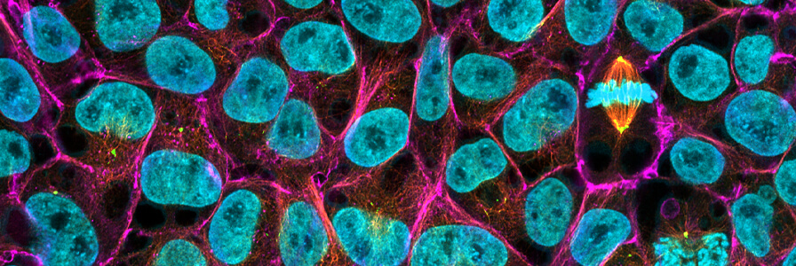 Fluorescent microscopy of human pluripotent stem cell colony