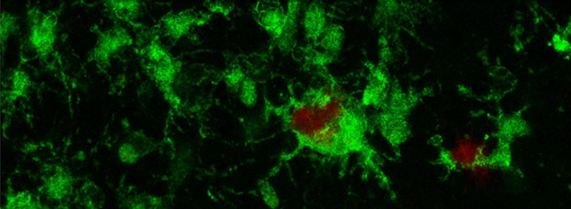 Wild type human iPSC-derived microglia (green) responding to amyloid plaques (red)