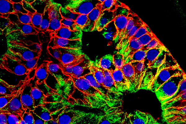 Branching lung organoids expressing SARS-CoV-2 entry proteins: ACE2 and TMPRSS2