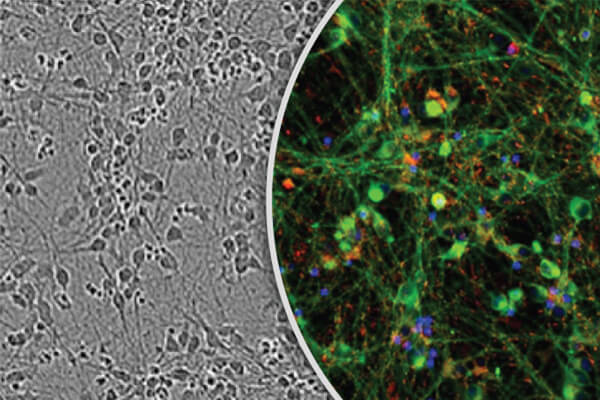 iCell® GlutaNeurons from CDI Source Fully Differentiated iPSC-Derived Glutamatergic Neurons