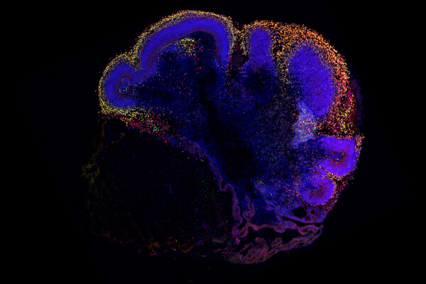 Register for the Brain Organoid Virtual Symposium, hosted in collaboration with OrganoVIR