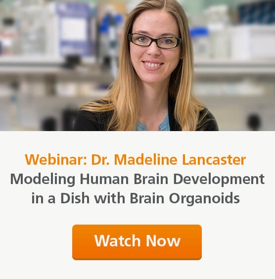 View the on-demand webinar by Dr. Madeline Lancaster on modeling human brain development in a dish with cerebral organoids