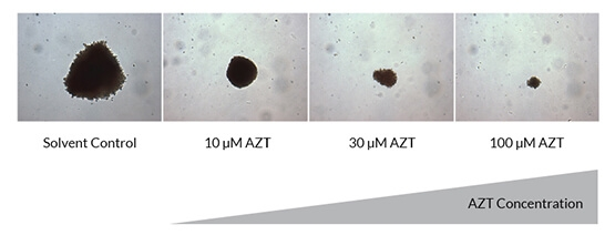 Photos of anti-proliferative effect of AZT on erythroid (BFU-E) colony size.
