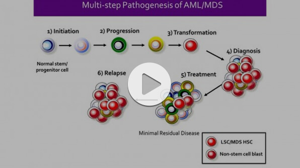 Webinar: Identification of Stem Cells in Myeloid Malignancies - Opportunities for Discovery and Translation