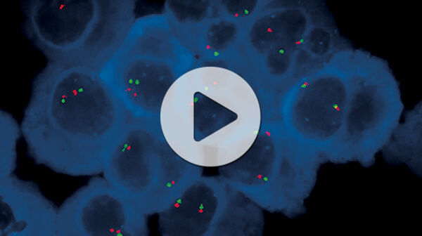 Webinar: How to Enhance the Sensitivity of Downstream Assays for CLL Research