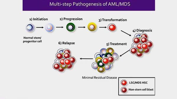 Identification of Stem Cells in Myeloid Malignancies