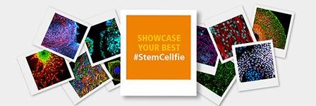 Showcase your best #StemCellfie!